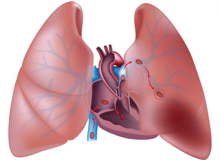 Осложнения острого инфаркта миокарда, факторы, влияющие на прогноз