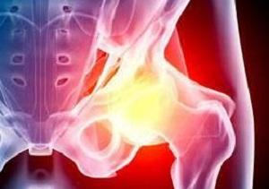 реабилитация после эндопротезирования тазобедренного сустава