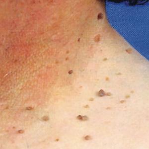 папилломы на шее причины и лечение