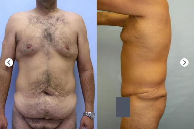 фото до и после бодилифтинга