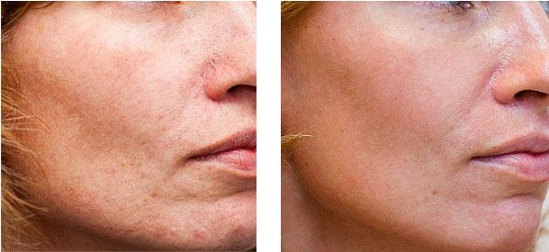 Фото до и после проведения SPRS-терапии