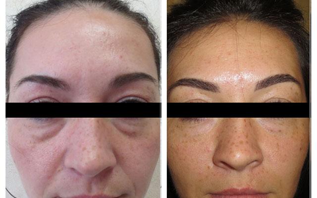 фото до и после инъекционной блефаропластики