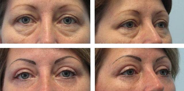 операция по удалению грыжи под глазами