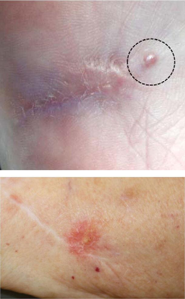 Проявления беспигментной меланомы