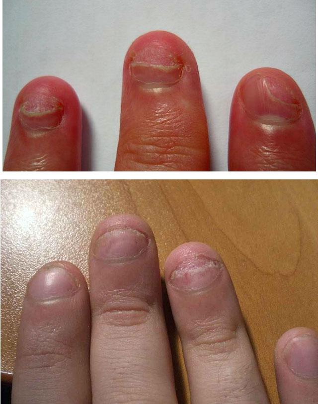 Симптомы онихолизиса