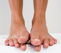 лечение грибка на ногах