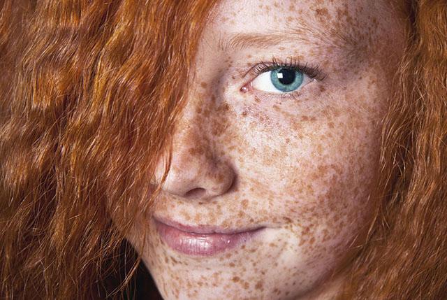 Удаление пигментных пятен на лице
