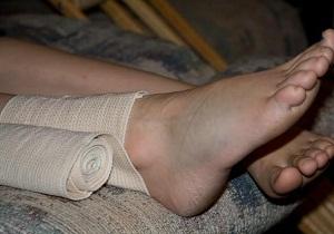 подвернула ногу что делать в домашних условиях