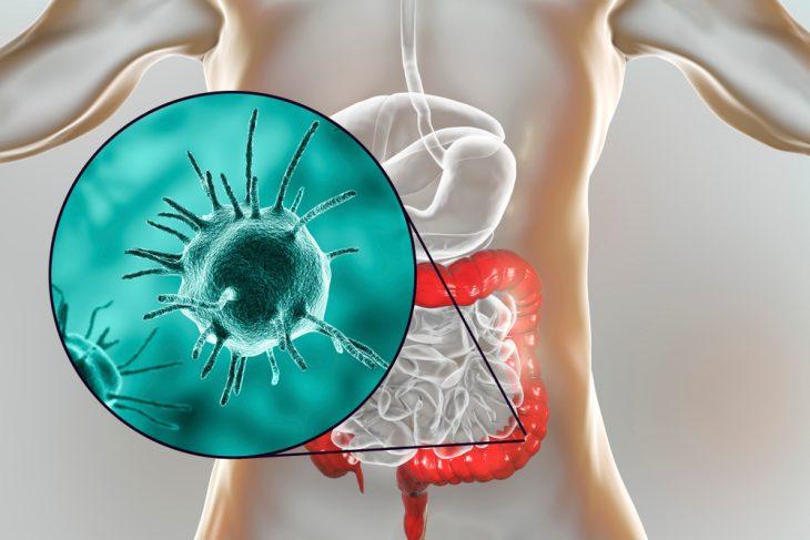 Балантидий кишечный: какое заболевание вызывает