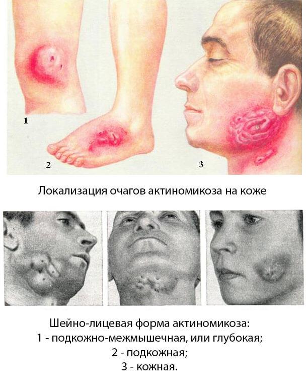 Кожный актиномикоз