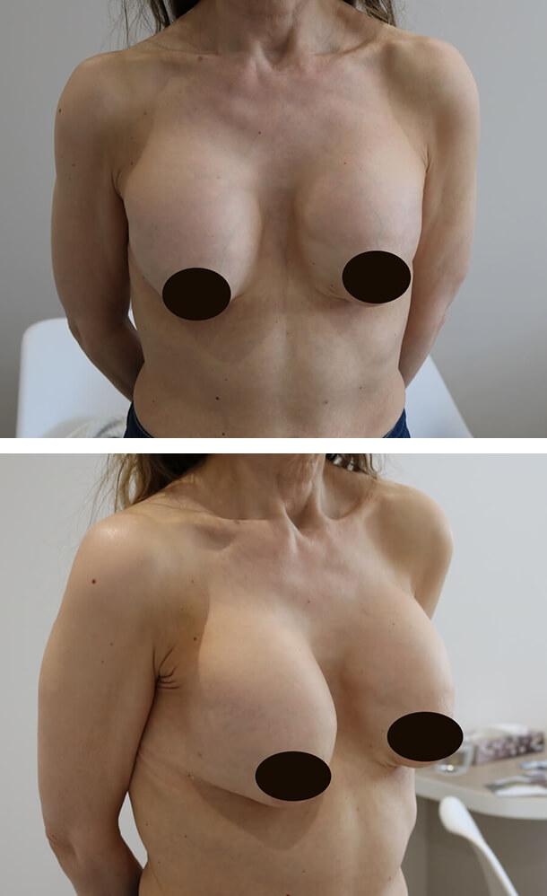 Капсулярная контрактура – ловушка для импланта!!!