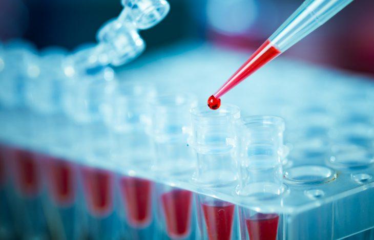 Лихорадка цуцугамуши: эпидемиология, клинические проявления, как лечить