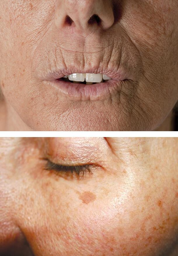 Курить – коже вредить! Что происходит с кожей во время курения и как снять с лица «маску курильщика»?