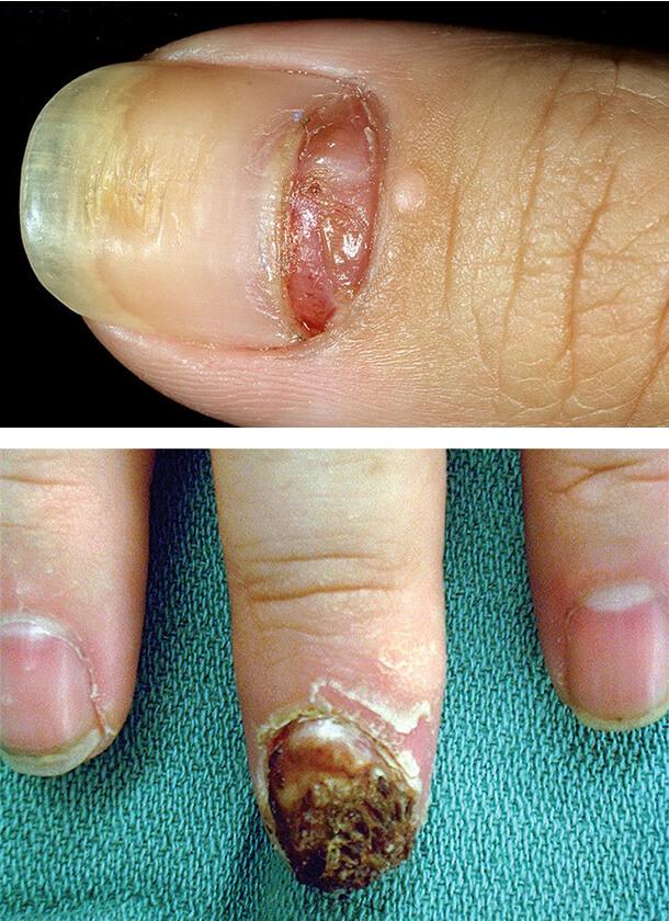 Рак ногтей на пальцах руки