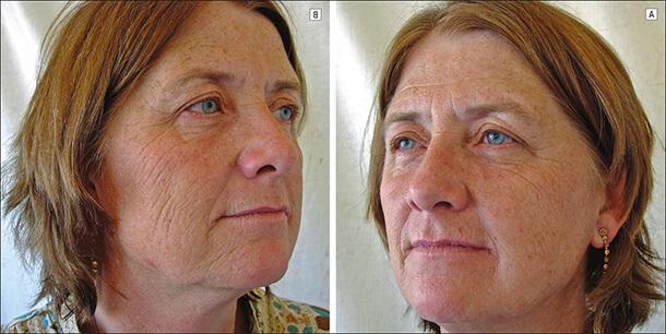 Влияние курения на кожу лица женщины