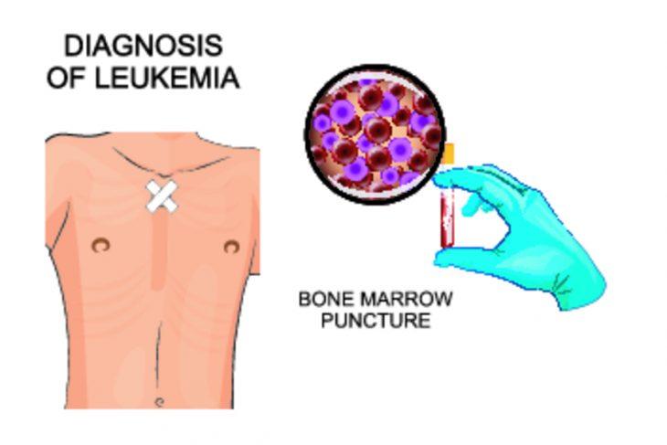 Хронический миелолейкоз: симптомы, картина крови, лечение