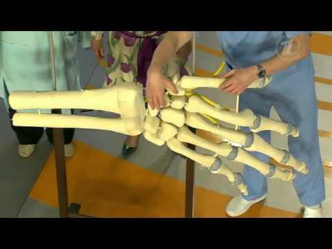 Перелом ладьевидной кости: механизм травмы, клинические проявления