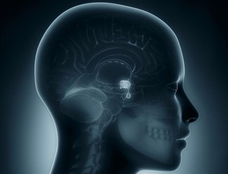 Макросомия (гигантизм): признаки, принципы лечения