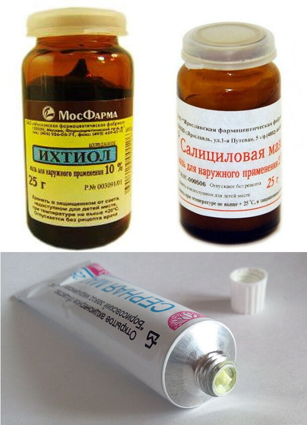 Вспомогательные препараты от грибка ногтя