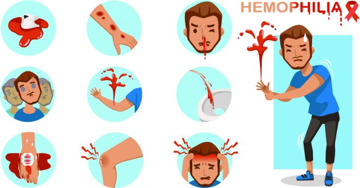 Геморрагический синдром у детей: какие болезни сопровождает и чем проявляется