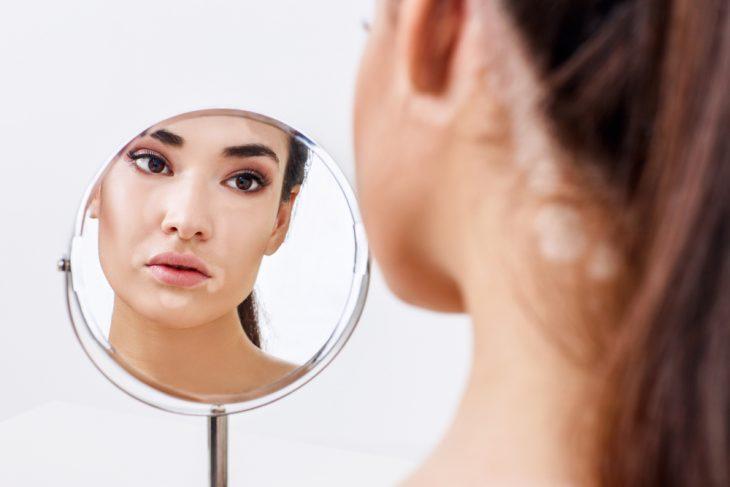 Диабетическая дермопатия и другие виды поражения кожи при диабете