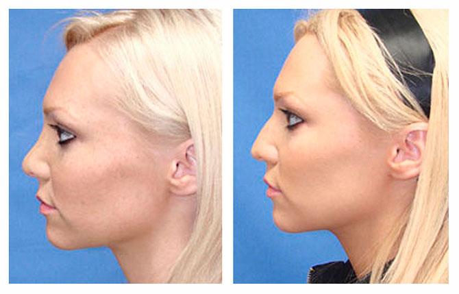 Контурная пластика носа: что нужно знать о процедуре