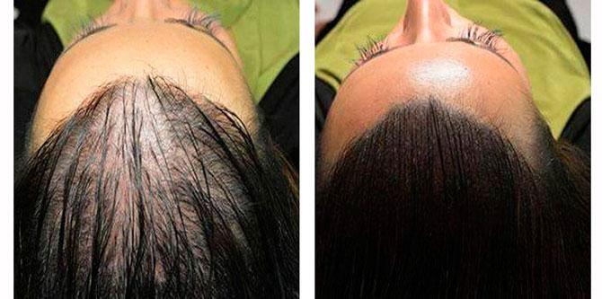 Почему волосы не растут