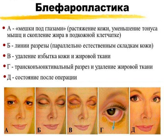 Малярные мешки под глазами: причины и как их убрать