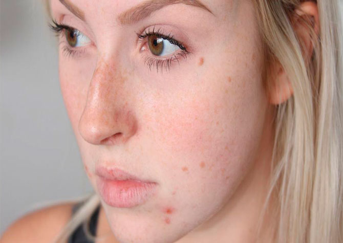 Подкожный клещ на лице: симптомы, лечение