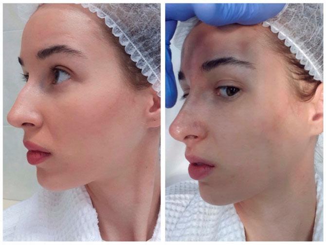 Контурная пластика носа филлерами: преимущества и особенности процедуры