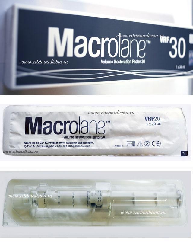 macrolane