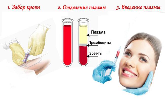 Проведение плазмотерапии