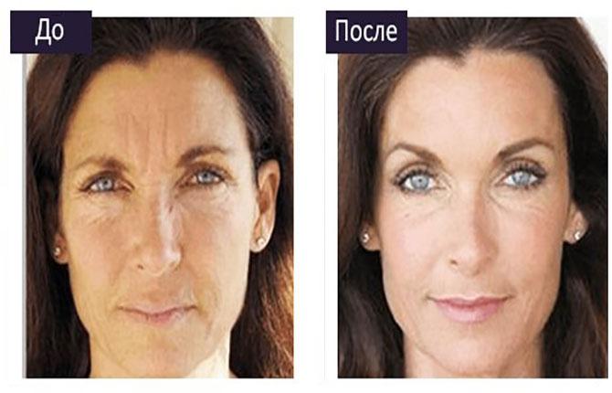 Плазмотерапия для лица – уникальный способ восстановления увядающей кожи
