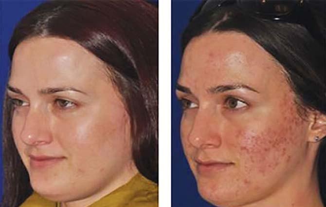 Фото до и после плазмотерапии