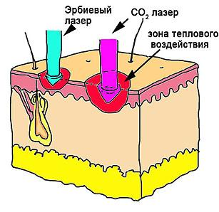 эрбиевый лазер или со2
