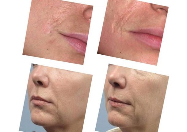 Особенности мезотерапии Дермахилом — инновационный прорыв в косметологии