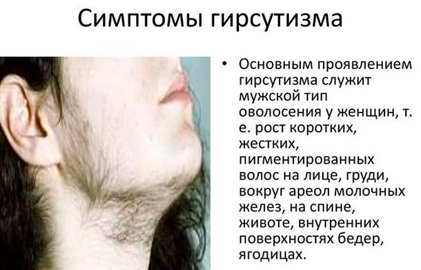 Симптомы гирсутизма