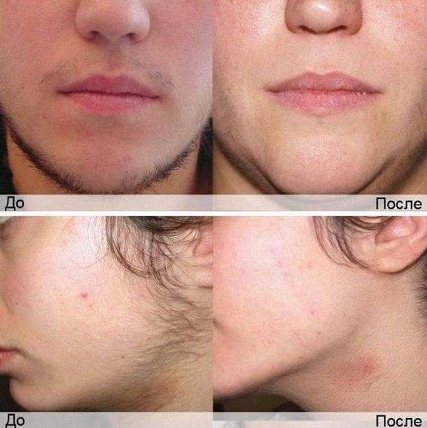 Фото до и после процедуры фотоэпиляции на лице