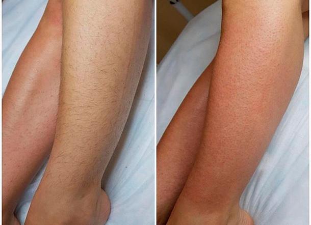 Ноги до и после лазерной эпиляции
