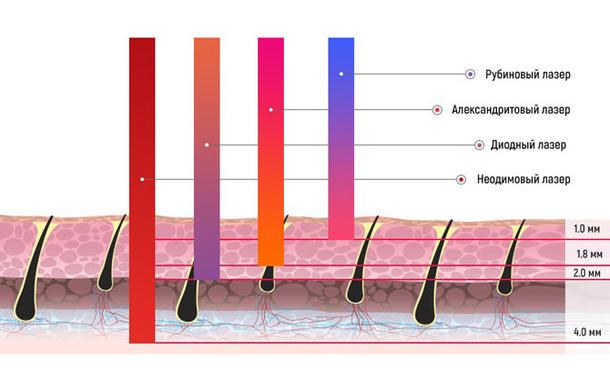 Глубина действия различных типов лазера для эпиляции